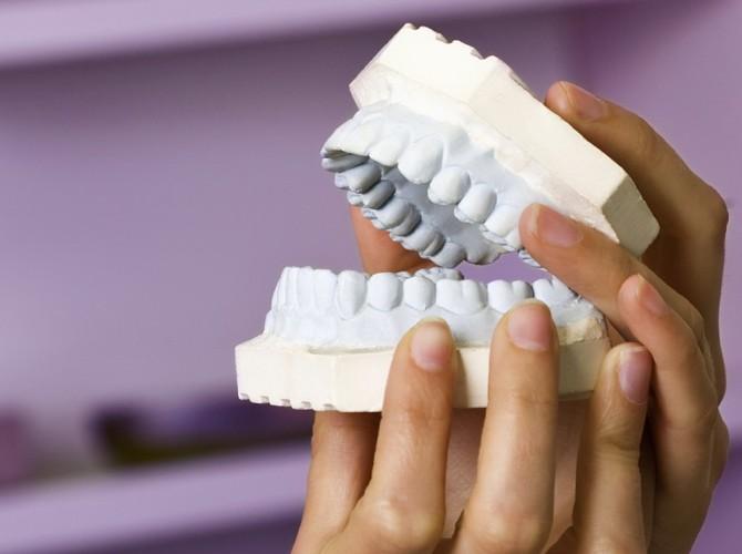 Подготовка к протезированию